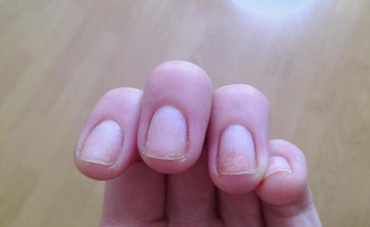 Все же при акриловом наращивании существует опасность испортить ногти.