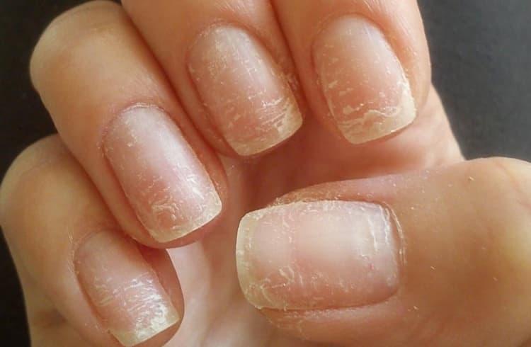 При грибковых заболеваниях ногтей акриловое наращивание не рекомендуется.