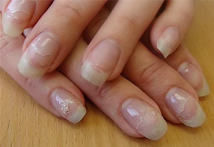 Гелевое наращивание ногтей требует определенных навыков, иначе неправильно проведенная процедура чревата отслойками.