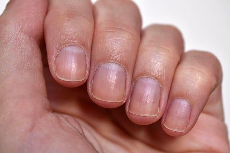 Технология наращивания ногтей на типсы подразумевает под собой и тщательную подготовку ногтевой пластины.