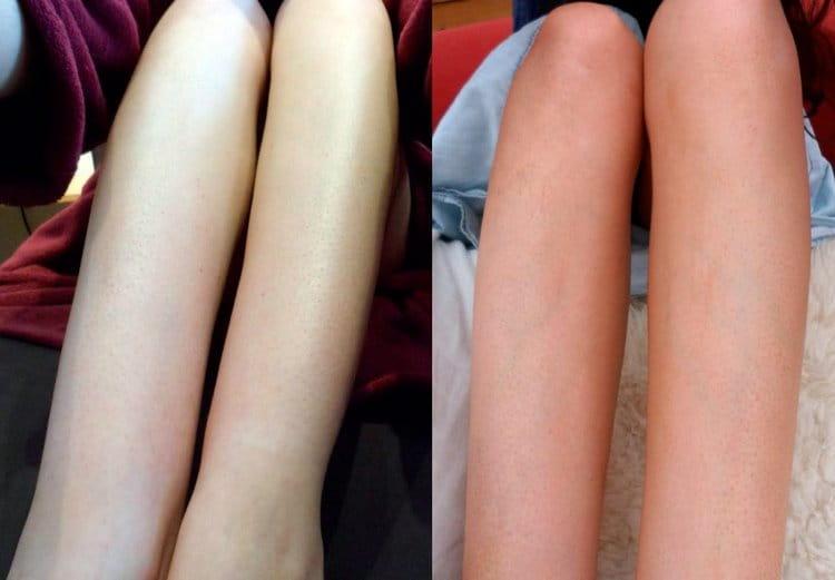 Узнайте, вредно ли ходить в солярий, если у вас сухая кожа.