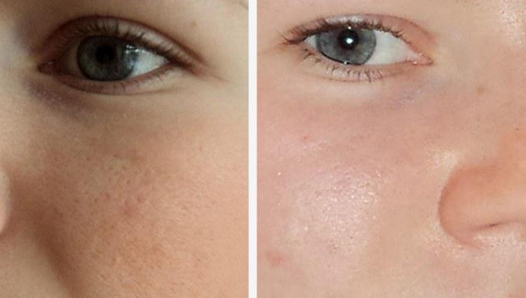 Посмотрите фото до и после вакуумной чистки лица.