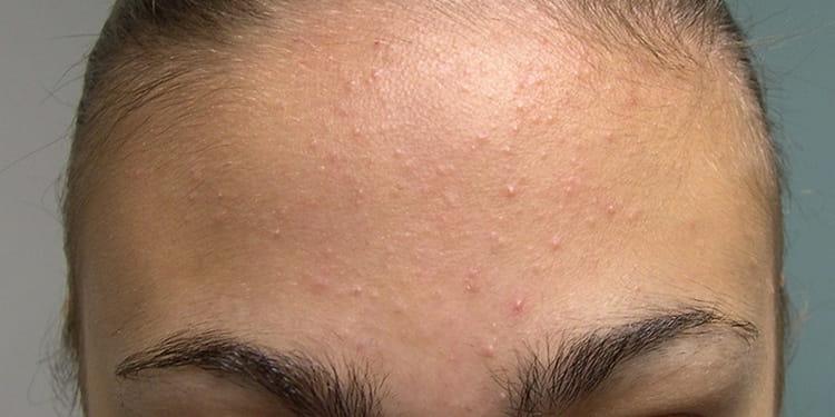 Процедура показана при жирной и пробной коже, но важно понимать, что вакуумная чистка лица имеет и противопоказания.