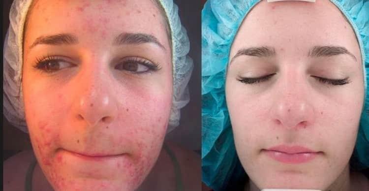 Кем делается лазерная чистка лица