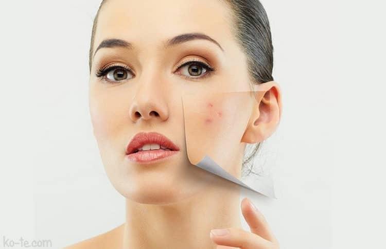 Как делается лазерная чистка лица, фото до и после