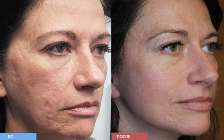 Зачем делается лазерная чистка лица