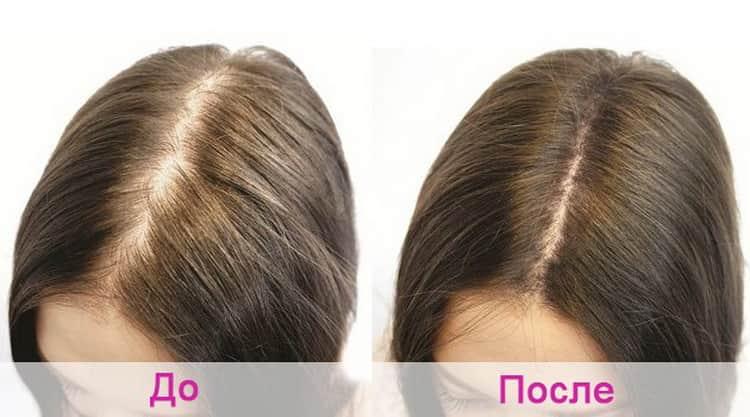 Как наносится маска для волос naturalis с горчицей: отзывы