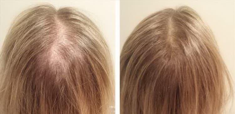 Лучшие рецепты масок против выпадения волос
