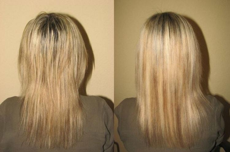 Маски от выпадения волос – рецепты, отзывы и фото