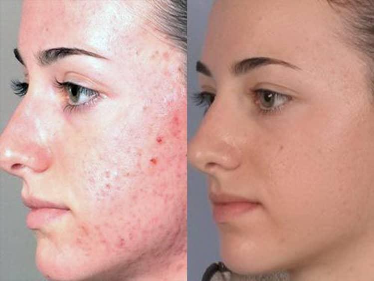 Отзывы о мезотерапии лица с фото до и после