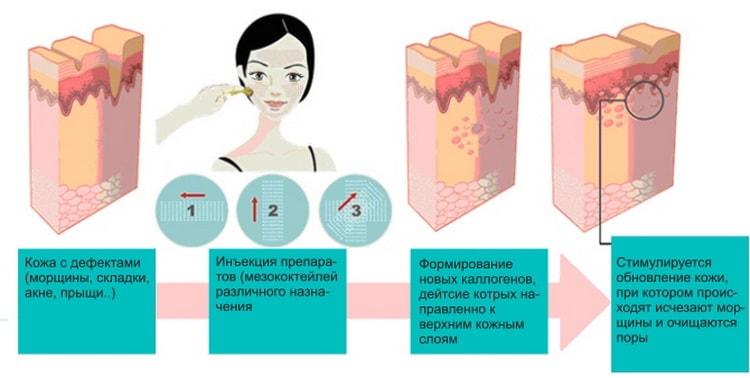 Как делается мезотерапия лица, отзывы фото до и после
