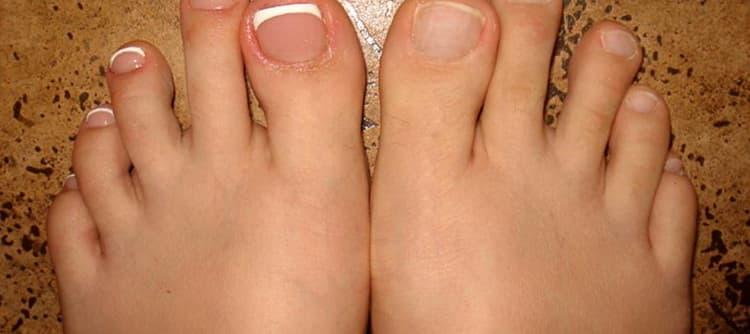 Технология и пошаговая инструкция наращивания ногтей на ногах с фото и видео