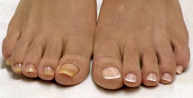 Как выглядит наращивание ногтей на ногах до и после