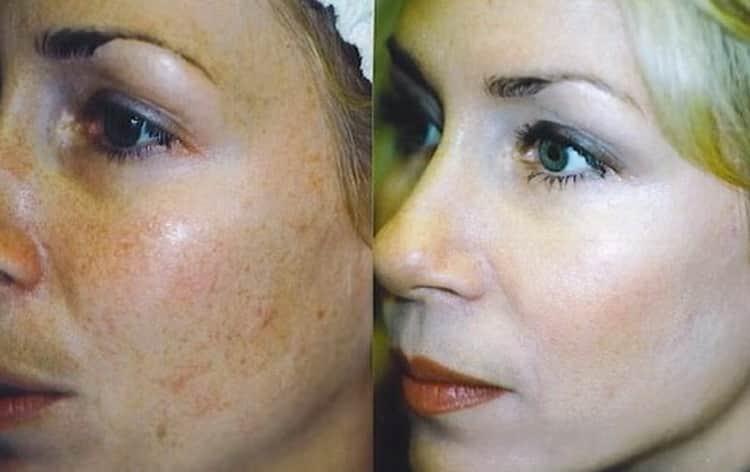 Как действует отбеливающий крем для лица milk skin