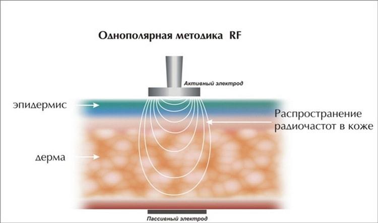 Процедура рф лифтинг позволяет хорошо подтянуть кожу.
