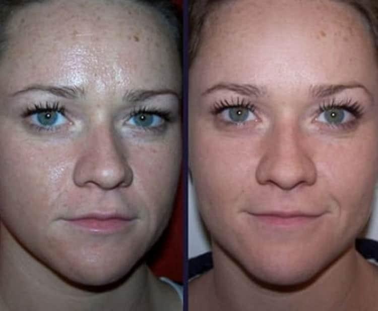 Как делается чистка лица ультразвуком: отзывы