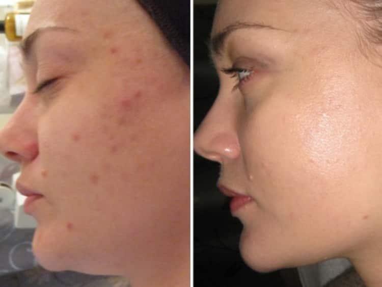 Как выбрать прибор для ультразвуковой чистки лица