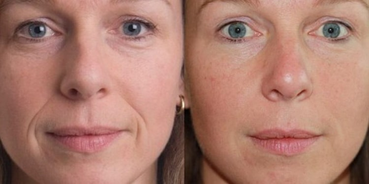 Как выбрать прибор для ультразвуковой чистки лица, отзывы
