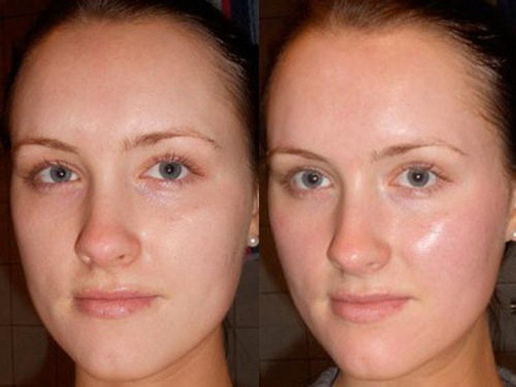 Как делается ультразвуковая чистка лица отзывы врачей