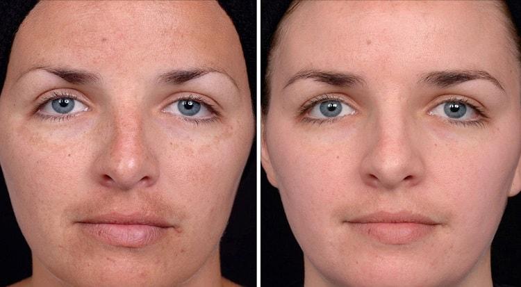Ультразвуковая чистка лица с фото до и после и отзывами