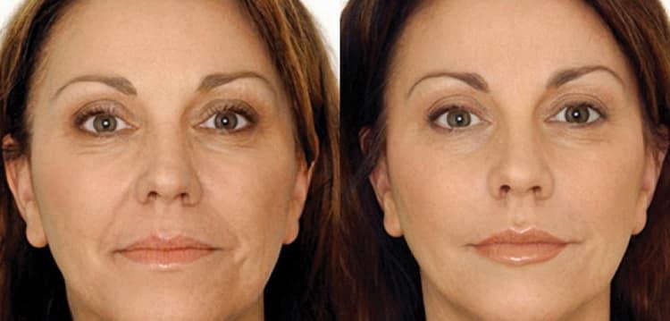 Как выбрать увлажняющий крем для чувствительной кожи лица