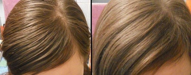 Комплекс витаминов помог бороться с сильной жирностью кожи головы.