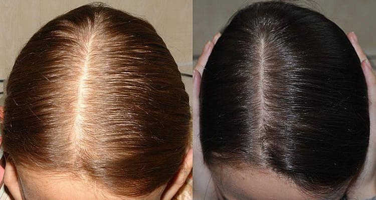 Учитывая цену препарата, отзывы о витаминах для роста волос Алерана скорее положительные, чем отрицательные.