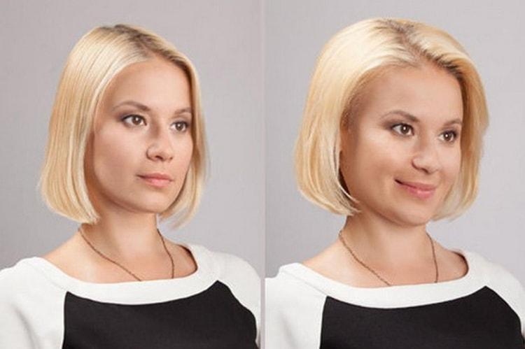 Важно понимать, что в ряде случаев после этой процедуры могут начать очень сильно выпадать волосы.