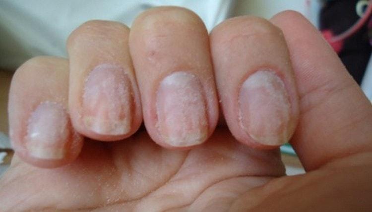 При снятии гель-лака ногти могут пострадать.