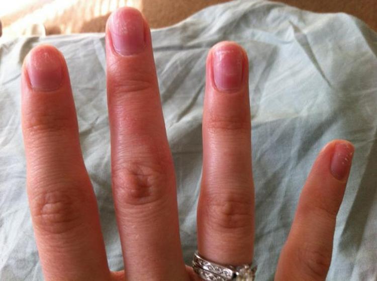 Важно помнить о том, что для здоровья ногтей будет лучше, если после снятия гель-лака ни смогут немного отдохнуть.