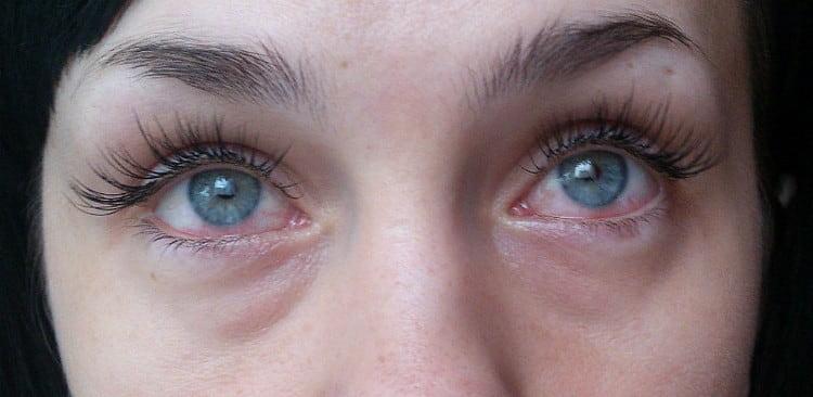 Если при наращивании ресниц клей попал в глаз, надо немедленно промыть его водой и обратиться в офтальмологу.