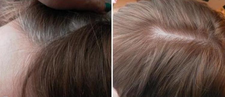Почитайте отзывы о краске Эстель для седых волос.