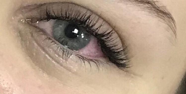Помните о том, что если во время процедуры в глаза попадет клей, их надо срочно промыть.