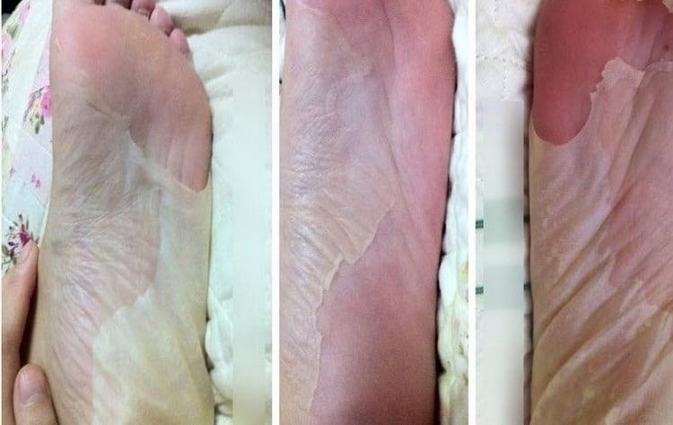 Конечно, через несколько дней после использования носочков кожа, которая облазит, выглядит, мягко говоря, непрезентабельно.