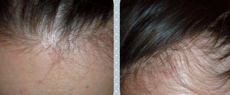 Витамины помогли справиться с выпадением волос.