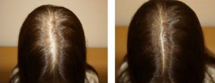 Волосы стали намного гуще, прекратилось выпадение.