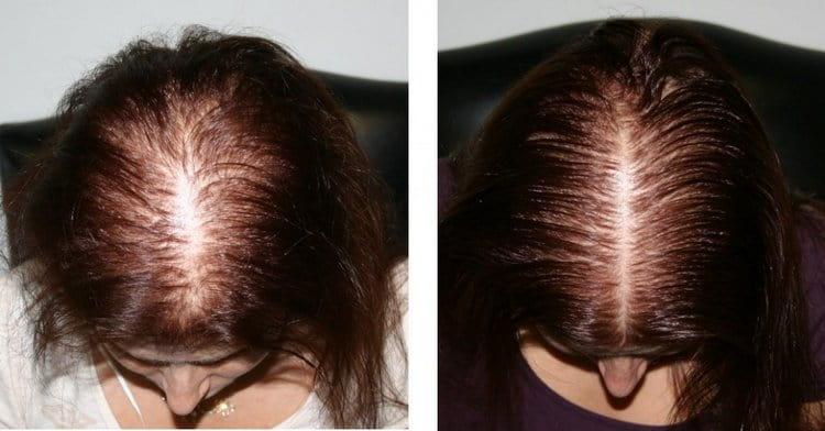 Жидкуий витамин Е для волос помог справиться с проблемой выпадения.
