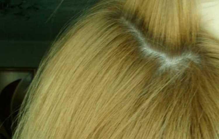 Средство положительно влияет на густоту волос.