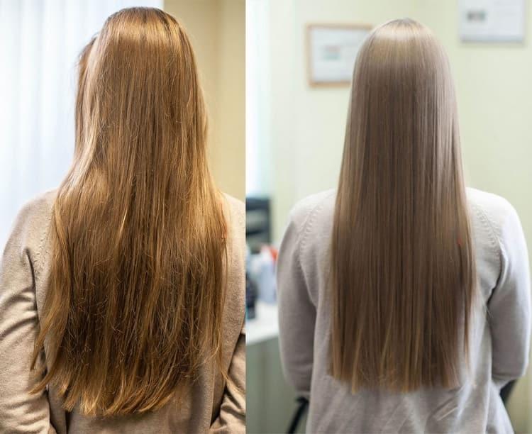 Правильно подобранные витамины помогут избавиться от многих проблем с волосами.