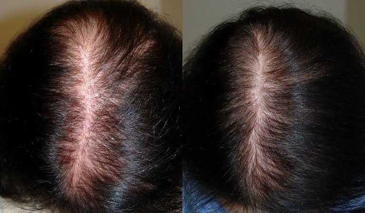 Использовала витамины для волос от выпадения в ампулах.