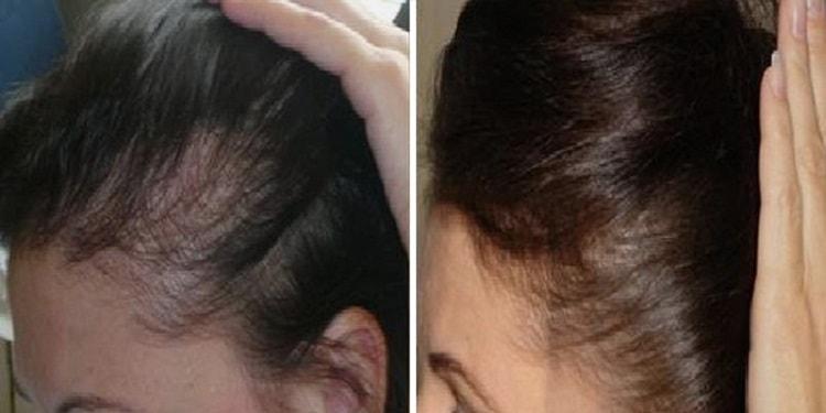 Есть много положительных отзывов о витаминах от выпадения волос у женщин.