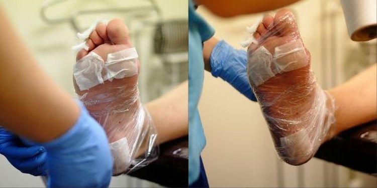 Посмотрите также видео-уроки о том, как делать педикюр жидким лезвием.