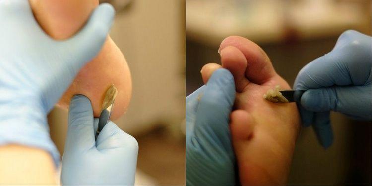 Посмотрите видео о том, как пользоваться жидким лезвием для педикюра.
