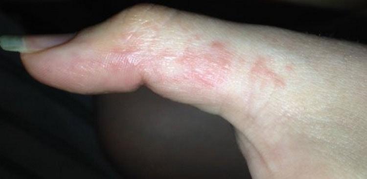 аллергия на гель лак лечение