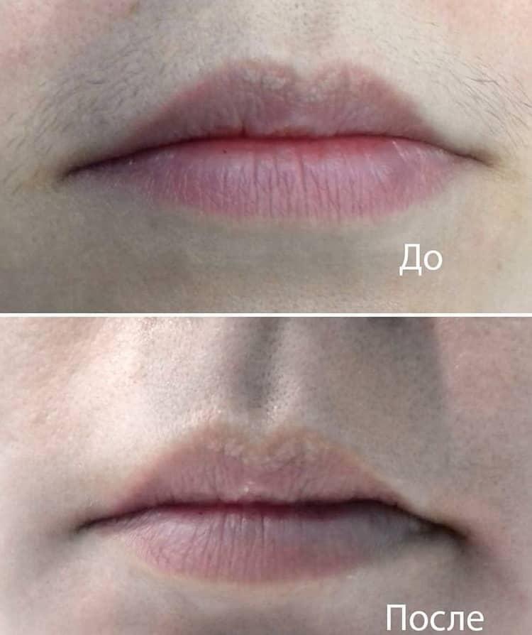лазерная эпиляция отзывы фото до и после