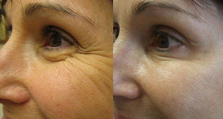 Процедура помогает разгладить многие морщины, улучшить состояние кожи.