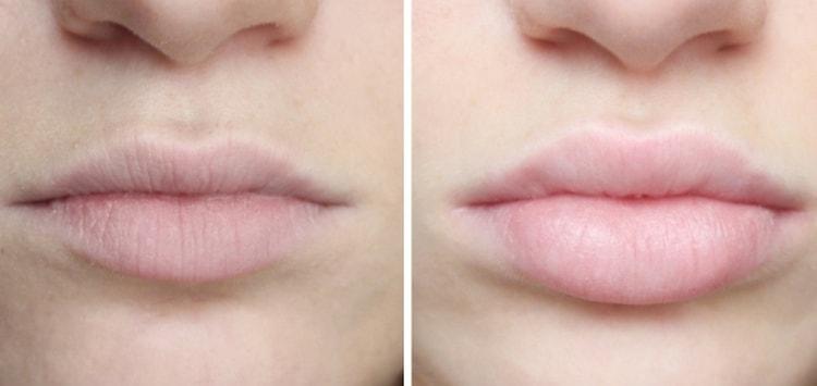 Чудный эффект дает биоревитализация губ гиалуроновой кислотой.