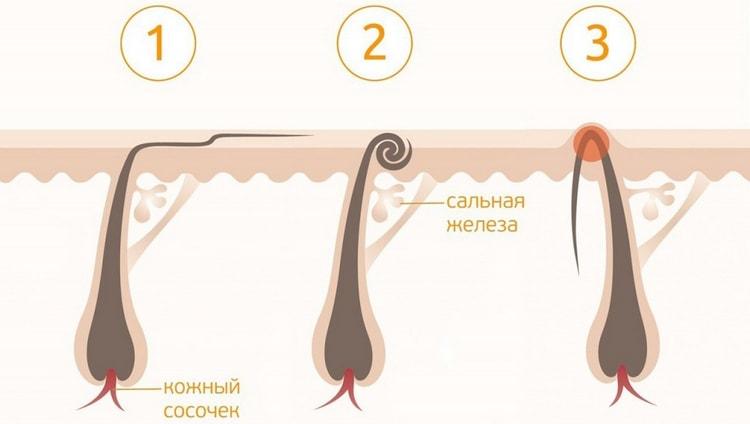 После некачественно проведенной депиляции могут начать врастать волосы.