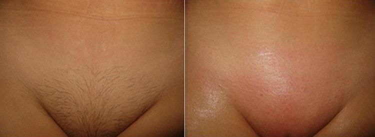 Посмотрите также фото до и после эпиляции бразильского бикини.