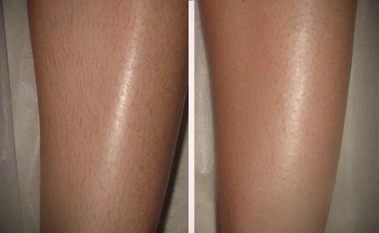 Фото до и после шугаринга.